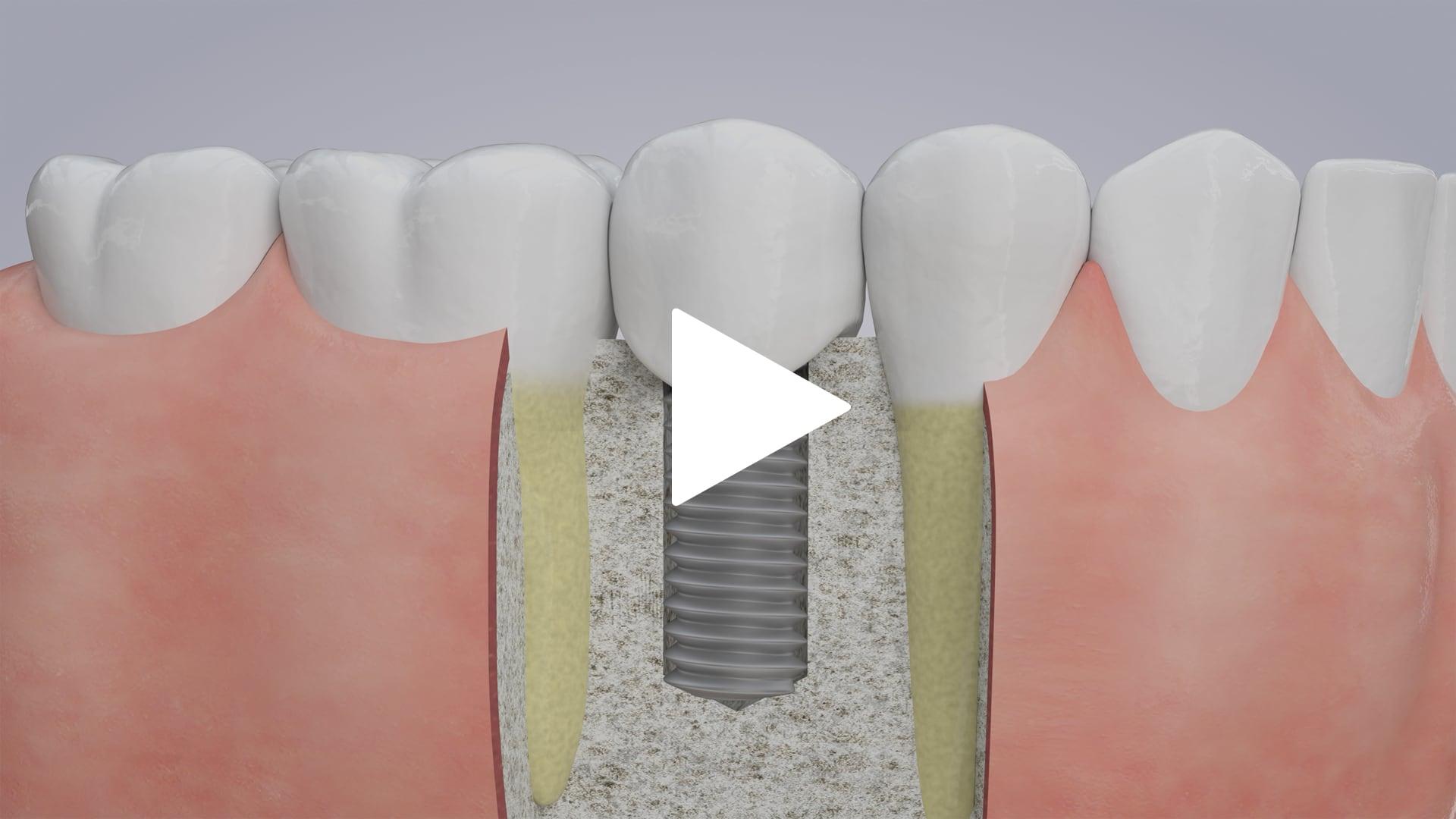 Dental Implants (Single)