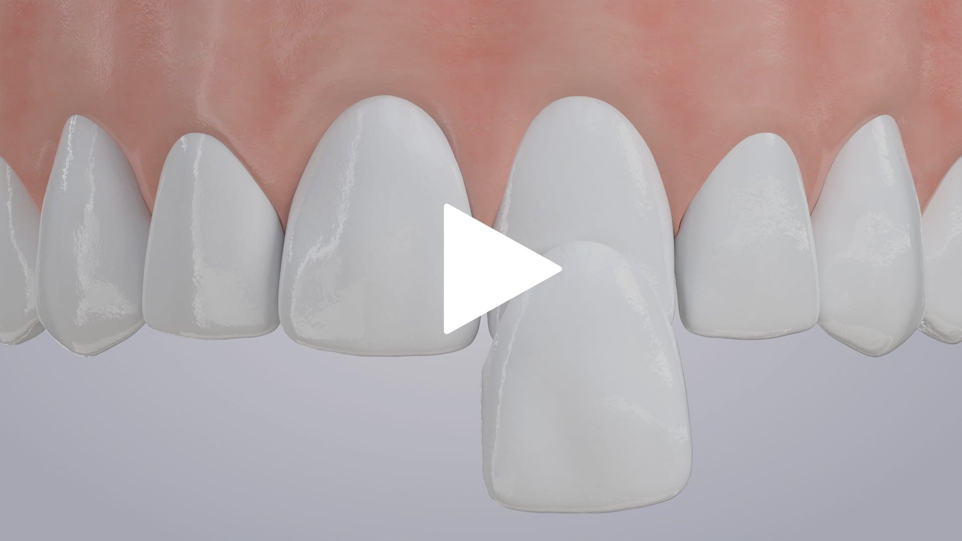 Porcelain Veneers   Livonia, MI   SmileHere Family Dental